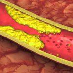 محدودیت های غذایی برای مبتلایان به چربی خون بالا