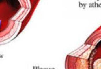درمان چربی خون بالا با تغییر شیوه زندگی
