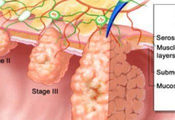 کاهش احتمال ابتلا به سرطان روده با افزایش سطح کلسترول خوب در بدن