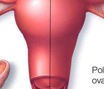 ویتامین D و فواید آن برای زنان مبتلا به سندرم تخمدان پلیکیستیک