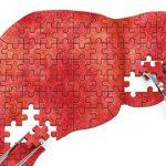 کاهش کربوهیدرات رژیم غذایی و بهبود بیماری کبد چرب غیرالکلی