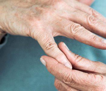 رژیم غذایی و بهبود علائم در بیماران مبتلا به استئوآرتریت