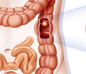 ارتباط سندرم متابولیک و کبد چرب با پولیپ کولون (روده بزرگ)