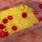 کلسترول خوب (HDL) و کلسترول بد (LDL): تفاوت این دو چیست؟