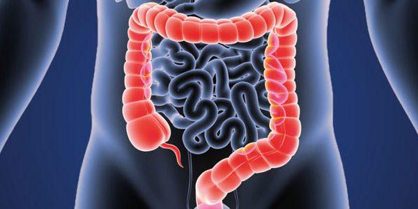 چاقی خطر ابتلا به سرطان روده بزرگ را 2 برابر افزایش میدهد