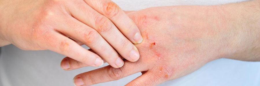 پروبیوتیکها: آیا برای بیماران مبتلا به پسوریازیس مفیدند؟